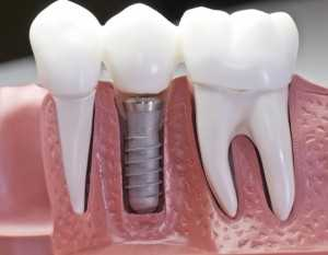 Dental Implant Surgery Model
