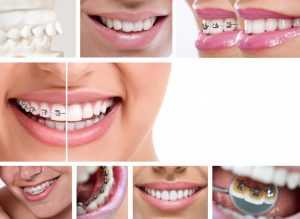 Difference of Traditional and Incognito Lingual Braces