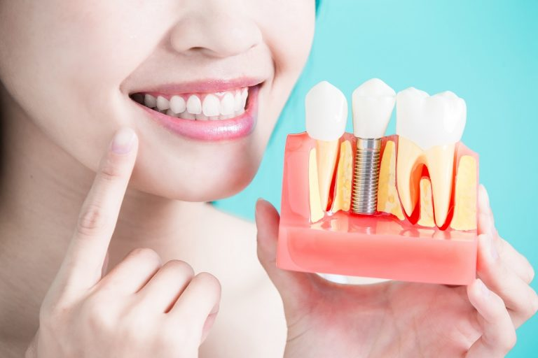 Woman holding dental implant model