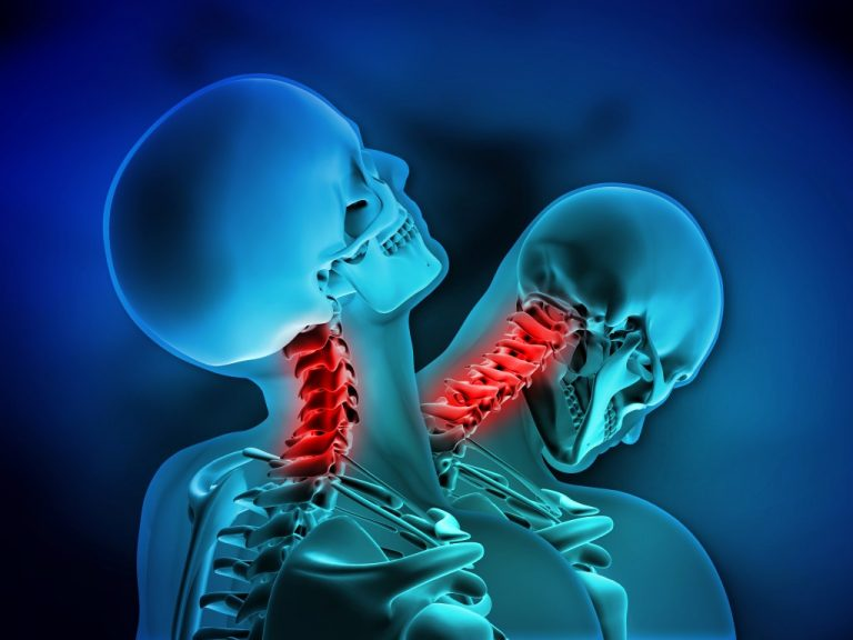 Facts you need to know about whiplash