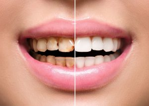 Woman's teeth before and after treatment