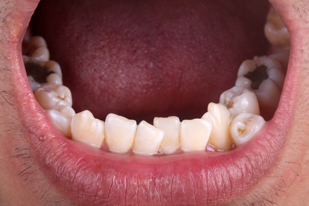 person with crooked teeth and cavities
